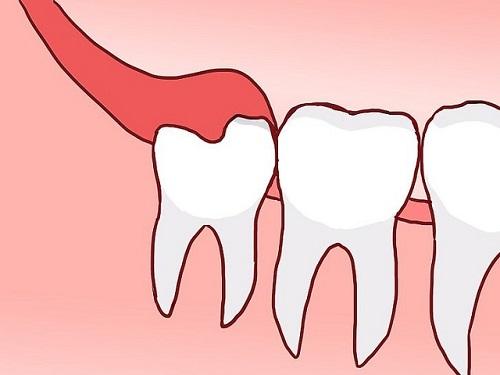 Mọc răng khôn có ý nghĩa gì không? Theo nhiều quan điểm 2