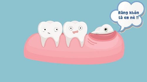 Mọc răng khôn trong bao lâu? Cách nhận biết răng khôn mọc 1