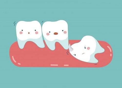 Mọc răng khôn trong bao lâu? Cách nhận biết răng khôn mọc 2