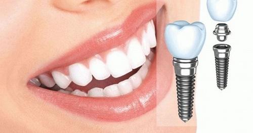 Cấy ghép răng implant có tốt không? 2