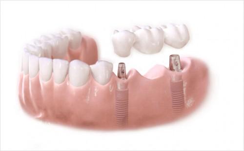 Cấy ghép trụ implant có ảnh hưởng sức khỏe không? 2