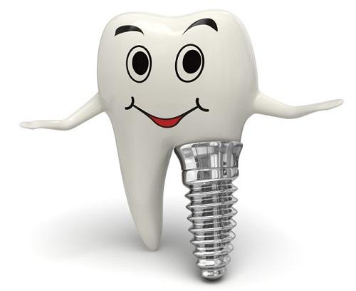 Cách chăm sóc răng sau khi cấy implant cho bạn 2
