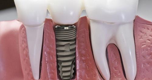 Cách chăm sóc răng sau khi cấy implant cho bạn 3