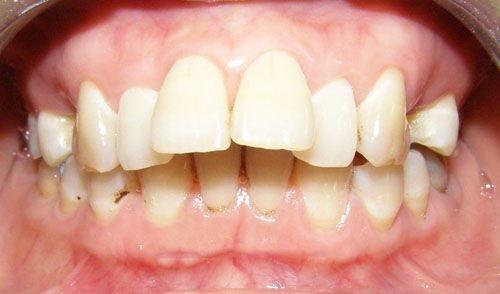 Phương pháp chữa răng hô không cần niềng bạn đã biết chưa-1