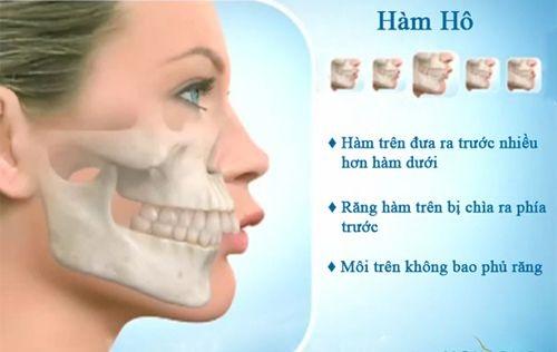 Phương pháp chữa răng hô không cần niềng bạn đã biết chưa-2