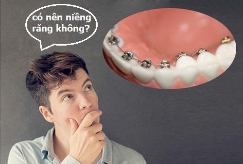 Phương pháp chữa răng hô không cần niềng bạn đã biết chưa-3