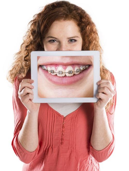 Phương pháp chữa răng hô không cần niềng bạn đã biết chưa-4