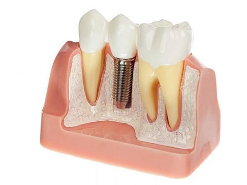 Địa chỉ trồng răng implant tốt nhất ở đâu? 1