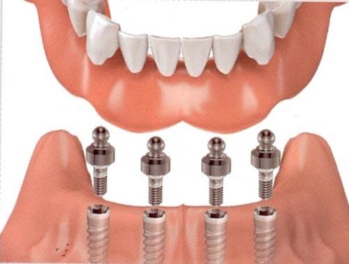 Địa chỉ trồng răng implant tốt nhất ở đâu? 2