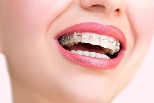 Chi phí thực hiện niềng răng 1 hàm bao nhiêu tiền?-1