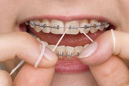 Chi phí thực hiện niềng răng 1 hàm bao nhiêu tiền?-4
