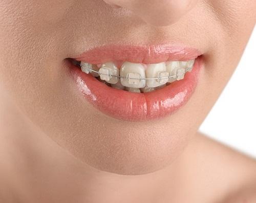 Thực hiện niềng răng 1 hàm có đau không?-1