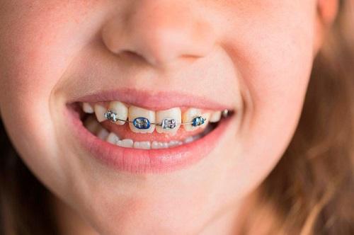 Thực hiện niềng răng 1 hàm có đau không?-3