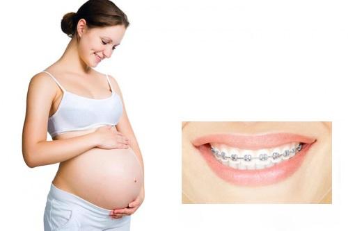 Lời khuyên từ chuyên gia - Niềng răng bao lâu thì nên có bầu?-1