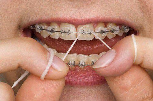 Lời khuyên từ chuyên gia - Niềng răng bao lâu thì nên có bầu?-4