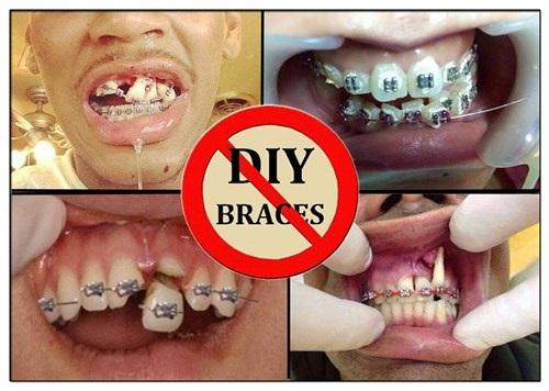 Tỷ lệ niềng răng bị hỏng có cao không? Có nên thực hiện dịch vụ này-1