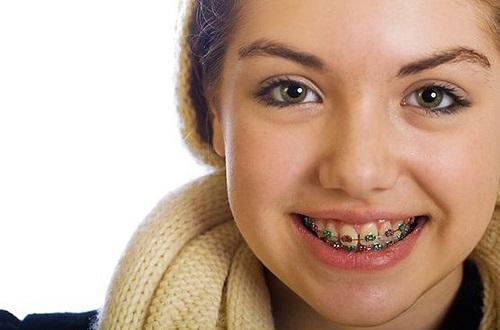 Tỷ lệ niềng răng bị hỏng có cao không? Có nên thực hiện dịch vụ này-4