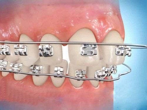 Cách xử lý tại nhà khi niềng răng bị tụt lợi-1