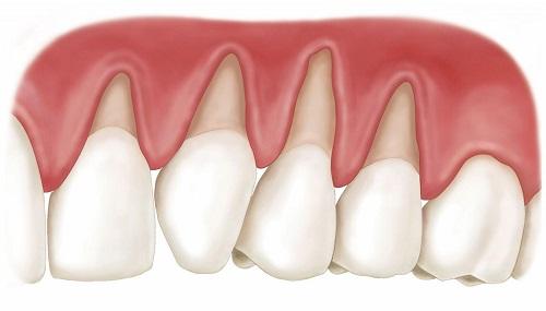 Cách xử lý tại nhà khi niềng răng bị tụt lợi-2