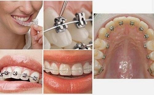 Cách xử lý tại nhà khi niềng răng bị tụt lợi-3