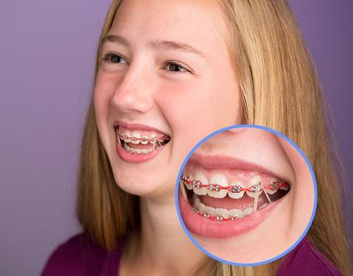 Cách xử lý tại nhà khi niềng răng bị tụt lợi-4