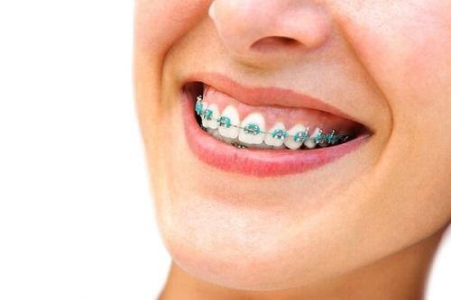 Niềng răng chữa cười hở lợi có được không?-1