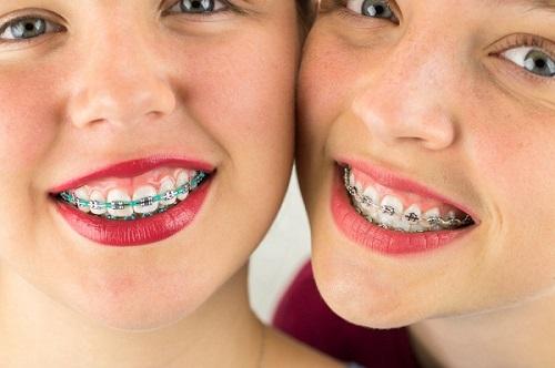 Niềng răng chữa cười hở lợi có được không?-2
