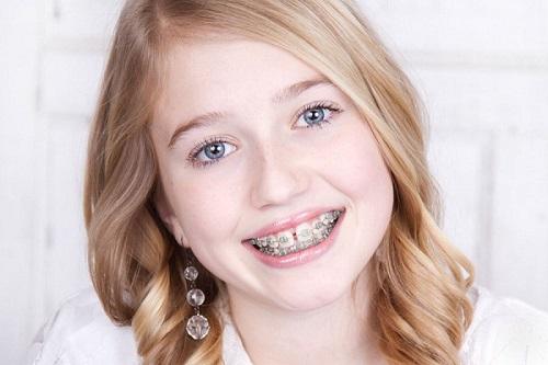 Cần biết niềng răng có hết móm không? Tư vấn từ chuyên gia-3
