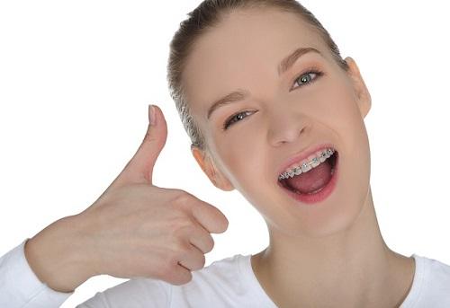 Cần biết niềng răng có hết móm không? Tư vấn từ chuyên gia-4