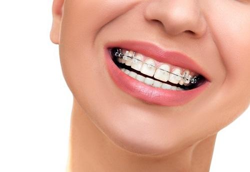 Mẹo xử lý niềng răng gây hôi miệng cho bạn-2