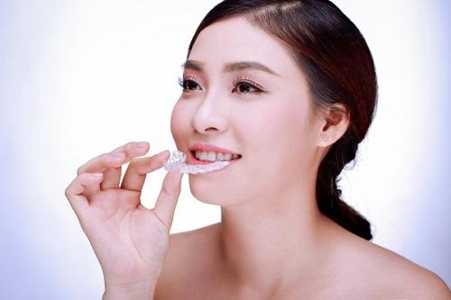 Mẹo xử lý niềng răng gây hôi miệng cho bạn-3