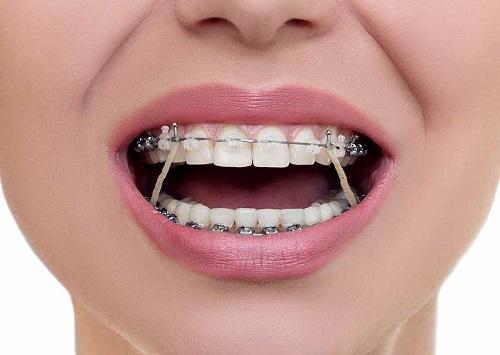 Niềng răng giai đoạn nào đau nhất không phải ai cũng biết?-1
