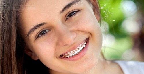 Thực hiện niềng răng hàm dưới mất bao lâu là có kết quả?-3