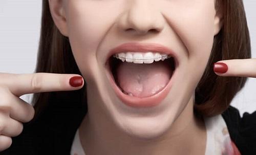 Bác sĩ trả lời câu hỏi: Niềng răng hàm trên mất bao lâu?-1