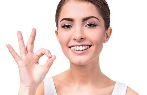Bác sĩ trả lời câu hỏi: Niềng răng hàm trên mất bao lâu?-2