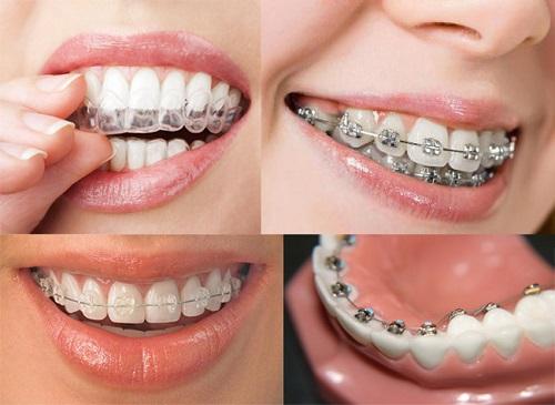 Bác sĩ trả lời câu hỏi: Niềng răng hàm trên mất bao lâu?-3