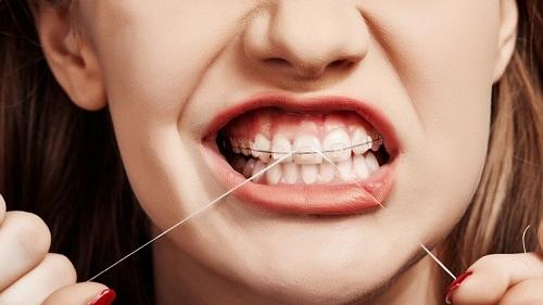 Bác sĩ trả lời câu hỏi: Niềng răng hàm trên mất bao lâu?-4