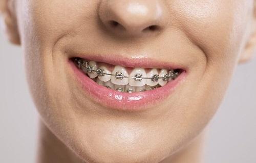 Niềng răng làm răng lung lay có sao không?-2