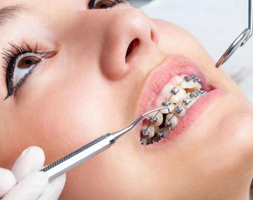 Niềng răng làm răng lung lay có sao không?-3