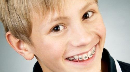 Niềng răng lệch hàm hiệu quả bất ngờ cho bạn-3