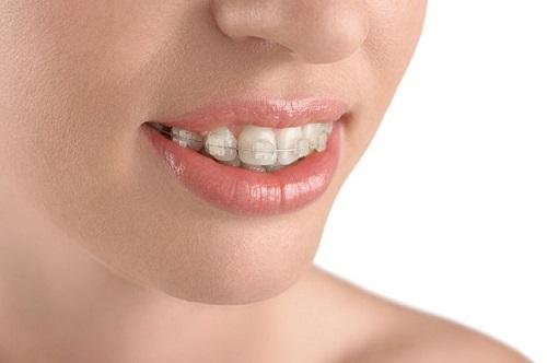 Lo lắng niềng răng lệch nhân trung? Cần lời khuyên-2