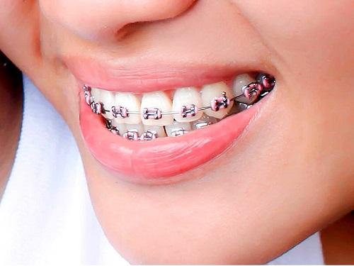 Lo lắng niềng răng lệch nhân trung? Cần lời khuyên-3