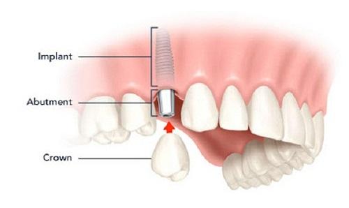 Thời gian cấy ghép răng implant trong bao lâu? 2