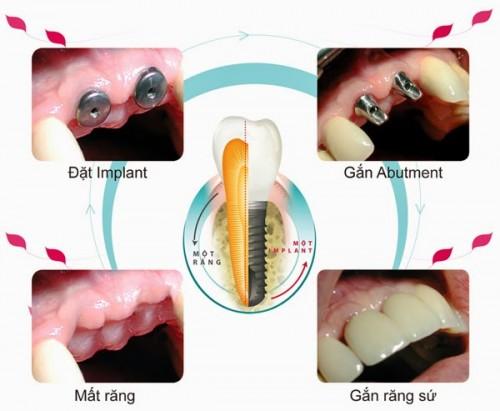 Trồng răng giả cố định giá bao nhiêu tiền? 2