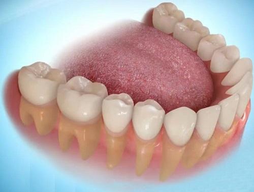 Có nên trồng răng sứ không? Trường hợp nào cần trồng răng?-2