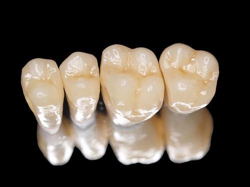 Có nên trồng răng sứ kim loại không? Vì sao?-1