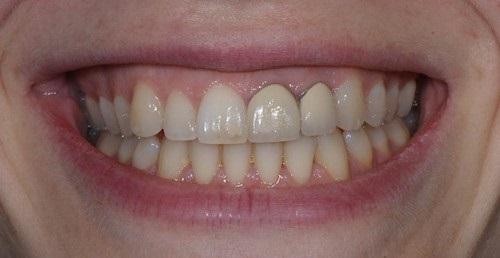 Có nên trồng răng sứ kim loại không? Vì sao?-3