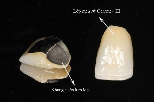 Có nên trồng răng sứ kim loại không? Vì sao?-2