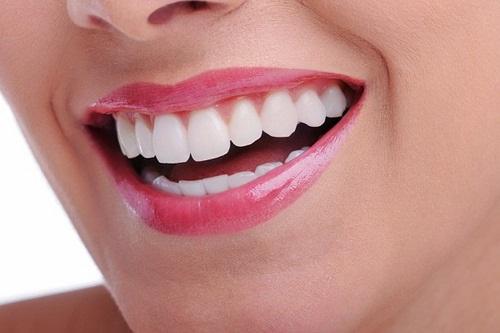 Có nên trồng răng sứ kim loại không? Vì sao?-4