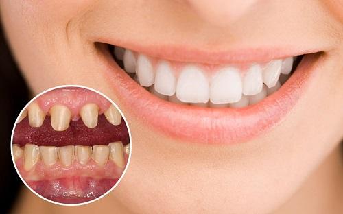 Làm răng sứ có đau không? Chia sẻ từ khách hàng-1